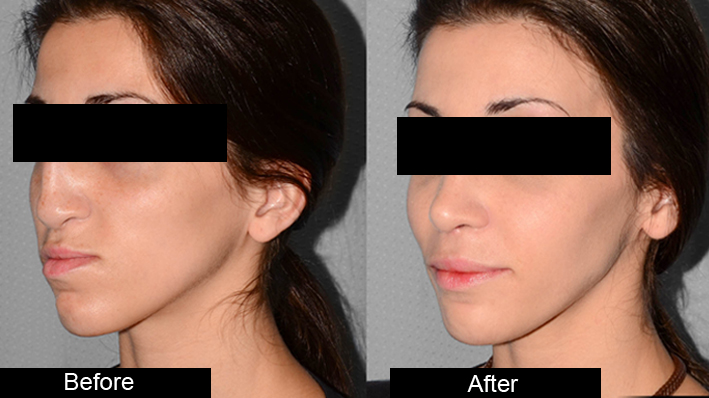 Blepharoplasty and Otoplasty Treatment by Dr Amanpreet Singh in AG Clinics