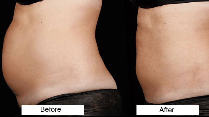 Body Contouring Treatment by Dr Amanpreet Singh in AG Clinics