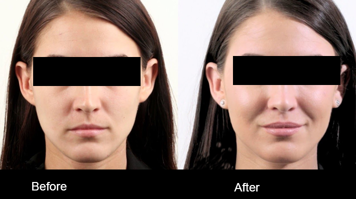 Fillers Treatment by Dr Amanpreet Singh in AG Clinics