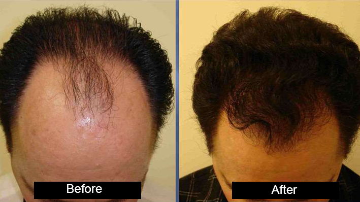 HARRTS(Robotic Hair Transplant by Dr amanpreet Singh in AG Clinics